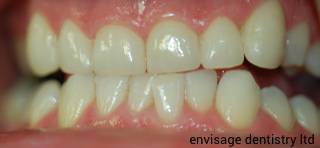 Porcelain Veneers dental patient after