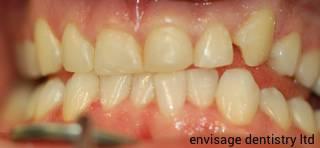 Veneers dental patient before