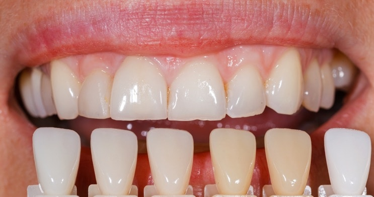matching porcelain veneers