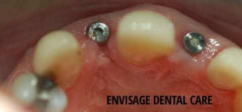 dental implants in a patient's mouth
